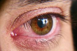 Tränendes Auge_Wohnbedingte Beschwerden nehmen zu
